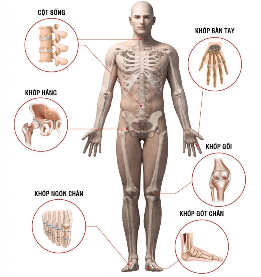 Thể bắt đầu cấp có biểu hiện nội tạng